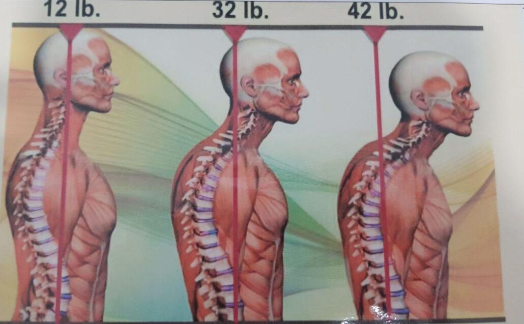 Peso que soportan nuestros hombros con la inclinación de cabeza